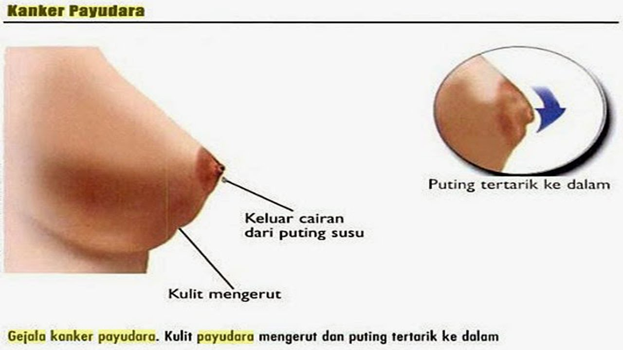 Image KHASIAT HERBAL AMPUH MENGOBATI KANKER PAYUDARA AMAN DAN HALAL
