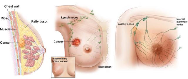 ciri-ciri-kanker-payudar